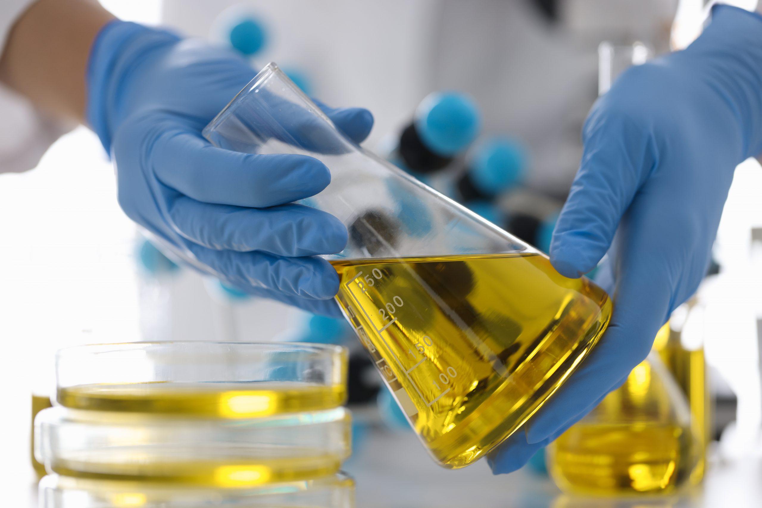 maos em luvas de borracha seguram frasco com liquido amarelo em laboratorio quimico indicando controle de qualidade na industria de refino de petroleo